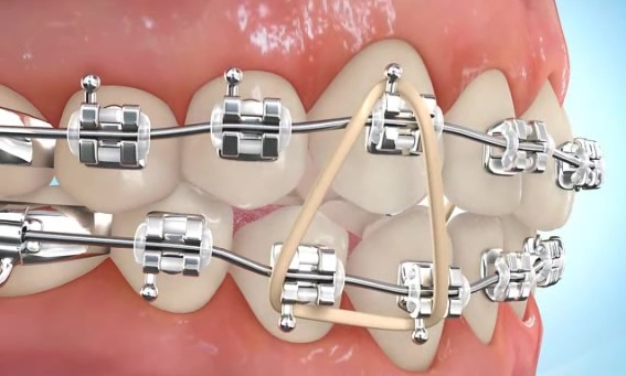 How To Put Rubber Bands On Braces Premier Orthodontics